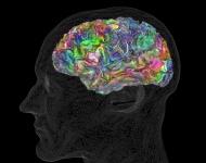 Científicos hallan el mapa semántico del cerebro